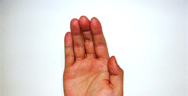 Home remedies for pinched nerve_New_Love_Times