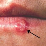 13 Miraculous Home Remedies For Herpes Which Work Like Magic