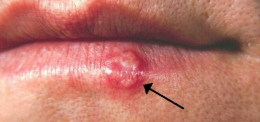 home remedies for herpes_new_love_times