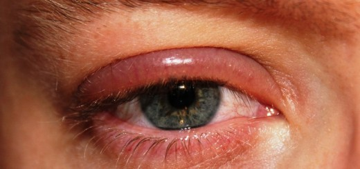 home remedies for blepharitis_New_Love_Times