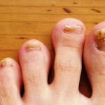 Toes Usually Get Very Little Care! It's Time We Change That!