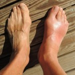 12 Natural And Effective Home Remedies For Gout Pain