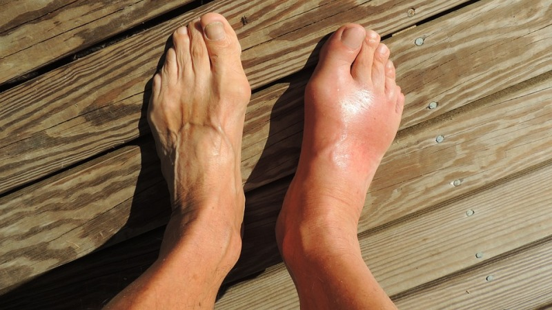 home remedies for gout pain_new_love_times