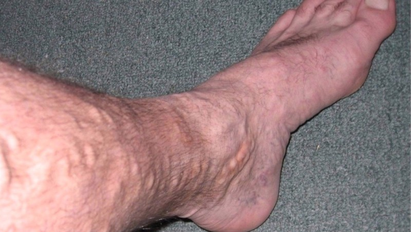 home remedies for varicose veins_new_love_times