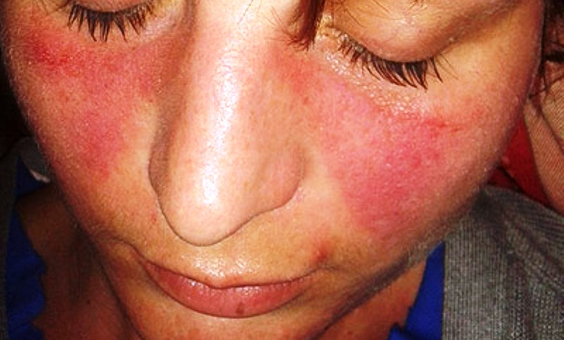home remedies for Lupus_New_Love_Times