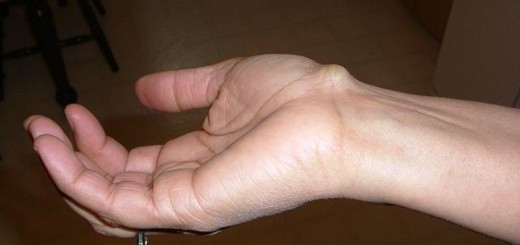 home remedies for ganglion cysts_new_love_times