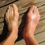 8 Best Home Remedies for Bunions