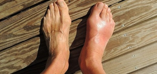 Home remedies for bunions_New_Love_Times