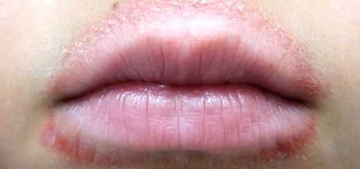 home remedies for perioral dermatitis_New_Love_Times